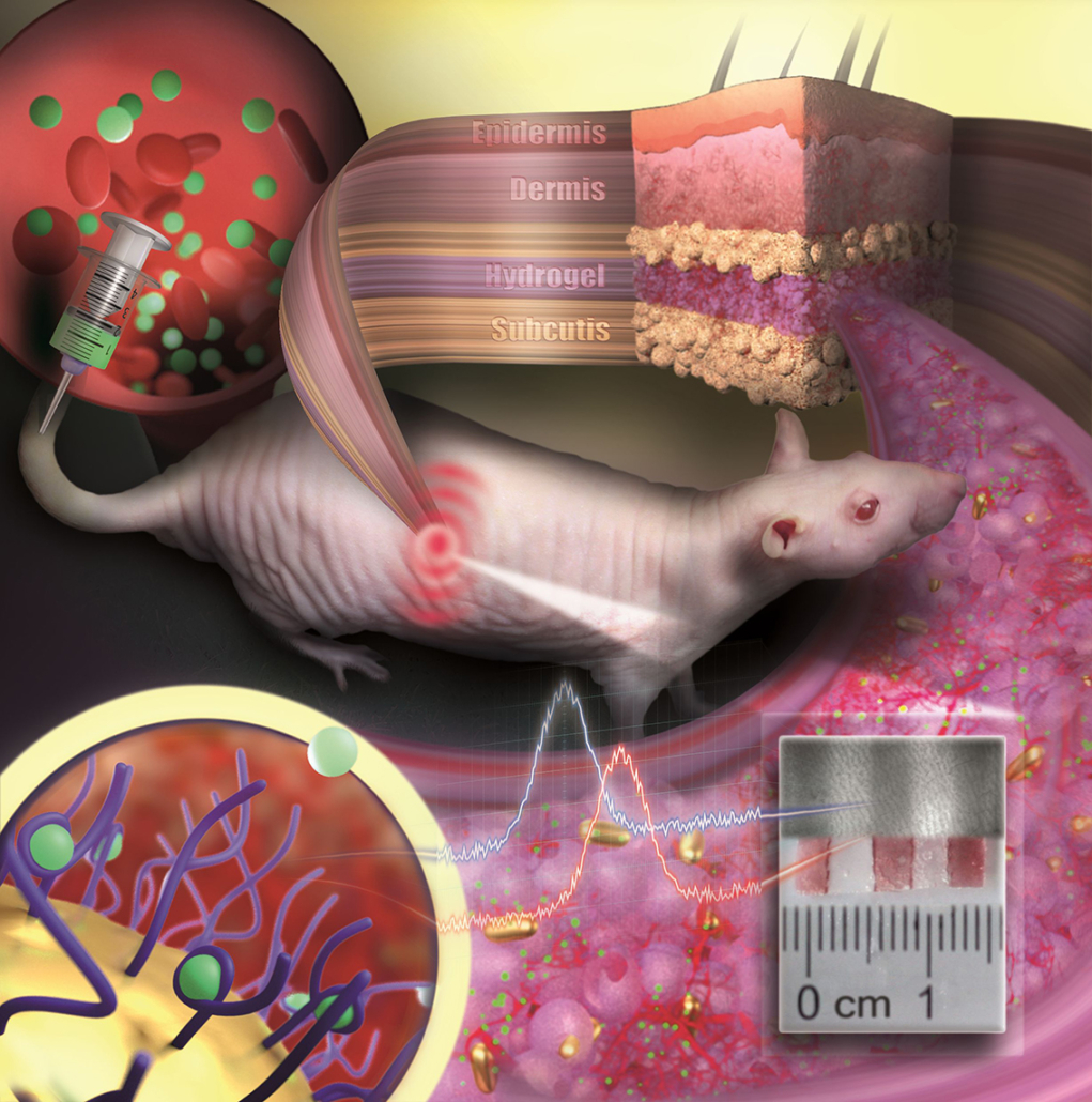 Gold nanoparticles embedded in a porous hydrogel can be implanted under the skin and used as medical sensors