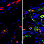 Lung cells in patients with severe COVID become trapped in a state (indicated by the green color) that prevents the cells from repairing damage caused by the infection. The left image shows cells from a healthy lung; the right image shows lung cells from a patient who died from COVID-19