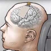 neuroprothesis
